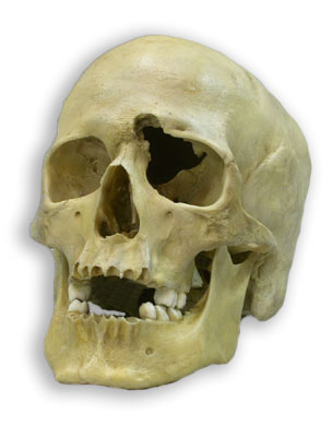 human_skull_with_gunshot.jpg